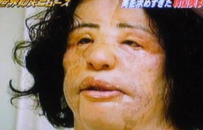 Un rostro totalmente acabado con  parpados caídos  nariz con una protuberancia y labio superior con una mas parte mas alta