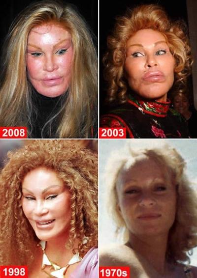 Una mujer rubia con ojos estirados pelo lacio y luego ojos mentón pelo van  cambiando hasta quedar  con ojos estirados y labios super gruesos