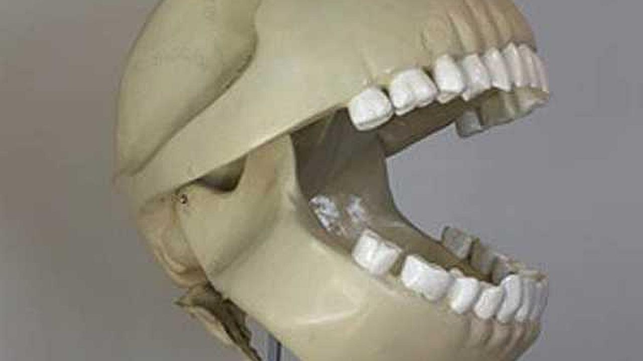 Finalmente es encontrado el cráneo de Pacman