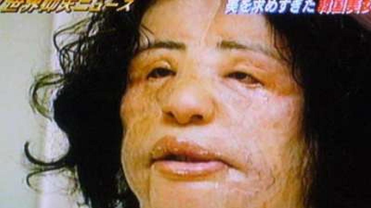Mujer adicta a las cirugías se inyecta aceite de cocina en su rostro