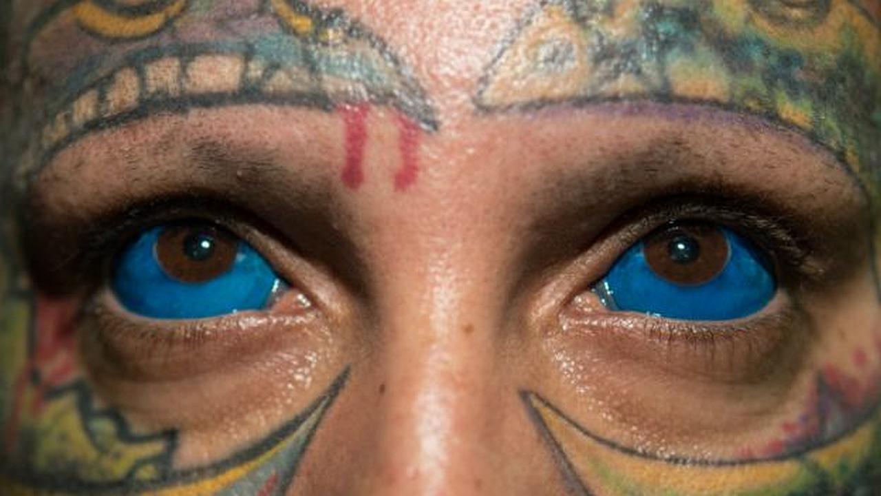 Tatuaje extremo en la córnea del ojo
