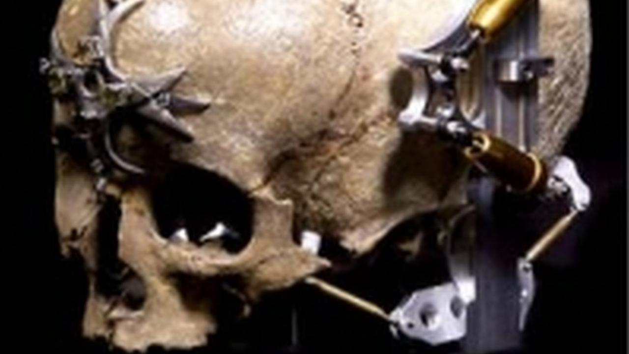 Tome fotografías de muerte con la cámara de cráneo