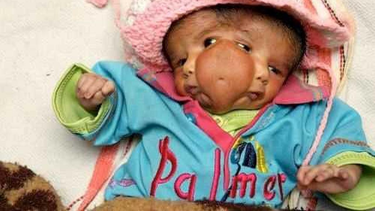 Una bebé muy diferente nace en un pueblo de la India